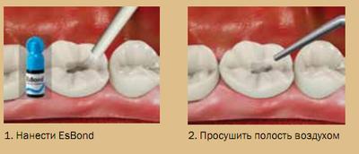 Image result for esbond