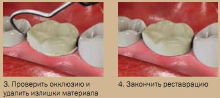 Использование EsTemp Implant, иллюстрация 2