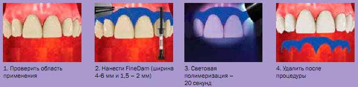 Использование FineDam, иллюстрация 1